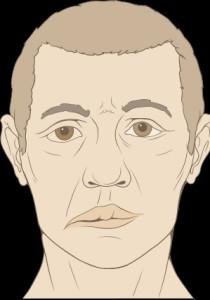 facial palsy