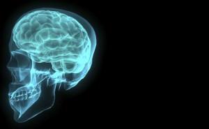 mózg, wylew krwi do mózgu, wylew, czaszka, brain