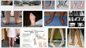 spastyczność stóp