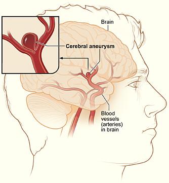 tętniak mózgu, fot. za wikimedia